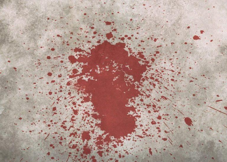Jak vyčistit skvrny od krve?